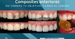 26 y 27 Febrero. Composites anteriores. Dr. Fernando Autran Mateu
