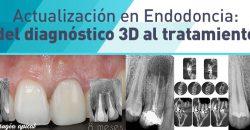 Curso 4. Viernes 03 y Sábado 04 de Febrero de 2017 – Endodoncia 3.0