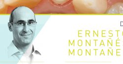 Curso Gemo Septiembre: Prótesis sobre dientes e implantes