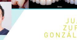 Curso Gemo 24 noviembre : Manejo quirúrgico en la estética dental y periimplantaria