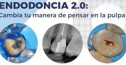 5 y 6 de Abril – Curso GEMO: Endodoncia 2.0