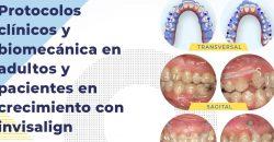 16 de Febrero – Curso GEMO: Protocolos clínicos y biomecánica en adultos y pacientes en crecimiento con invisalign