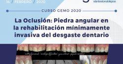 14 de febrero – La Oclusión: Piedra angular en la rehabilitación mínimamente invasiva del desgaste dentario