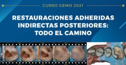 16 y 17 de Abril: RESTAURACIONES ADHERIDAS INDIRECTAS POSTERIORES: TODO EL CAMINO